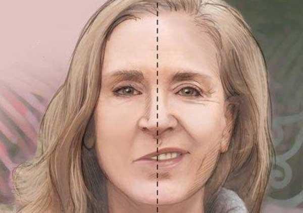 Парез лицевого нерва может привести к
